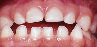 Anterior Composite Crown - after treatment