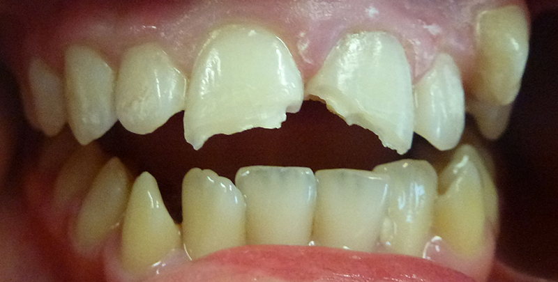 White Fillings - Before