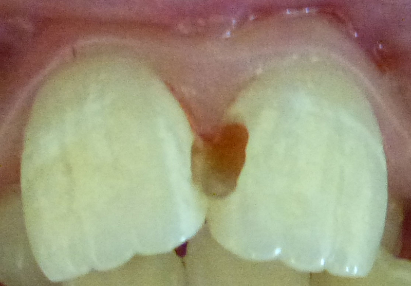 White Fillings - During Treatment