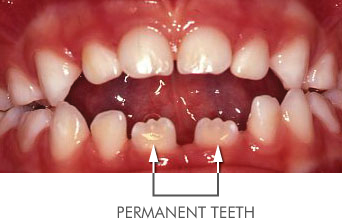 Incorrect position of teeth