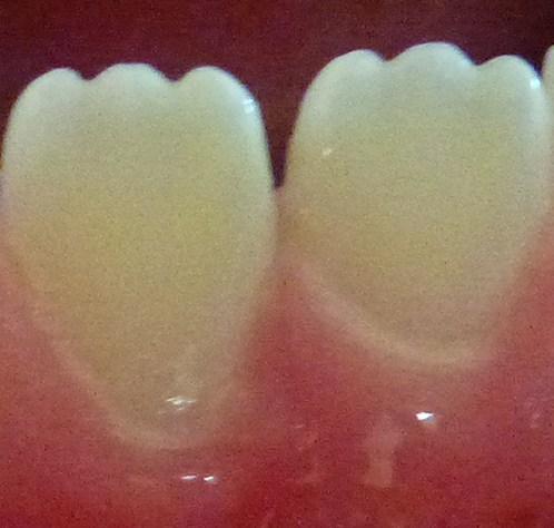 Lower permanent (adult) central incisors