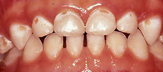 Progression of Untreated Dental Disease in Young Children
