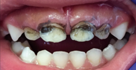 Front (primary) teeth with tooth decay - AFTER application of SDF