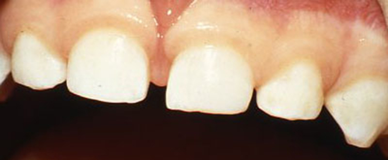 Trauma to Primary (Baby) Teeth - After