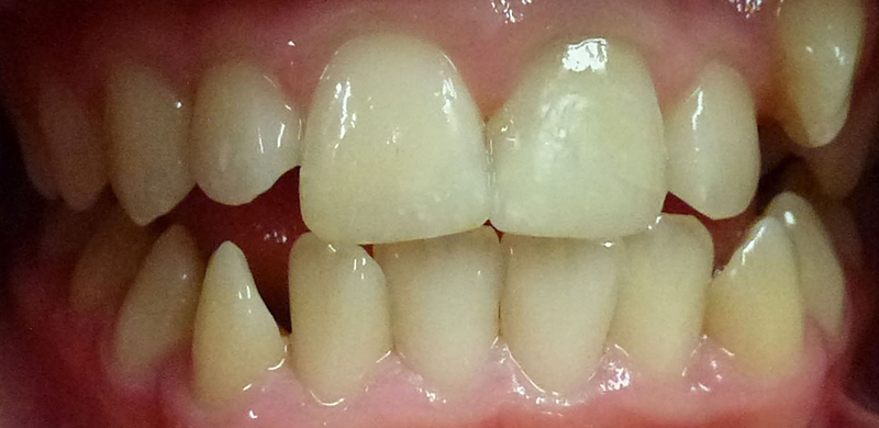 Trauma to Permanent Teeth - After
