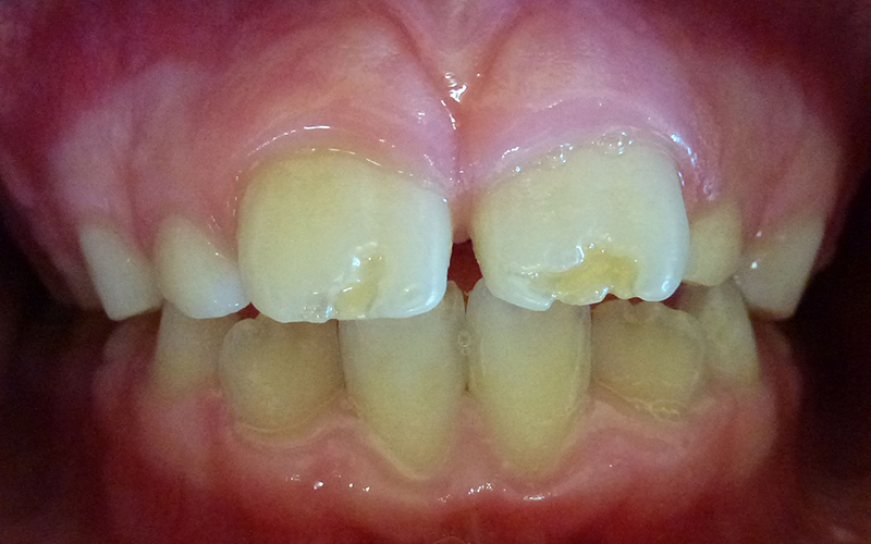 Defects on Permanent (Adult) Teeth