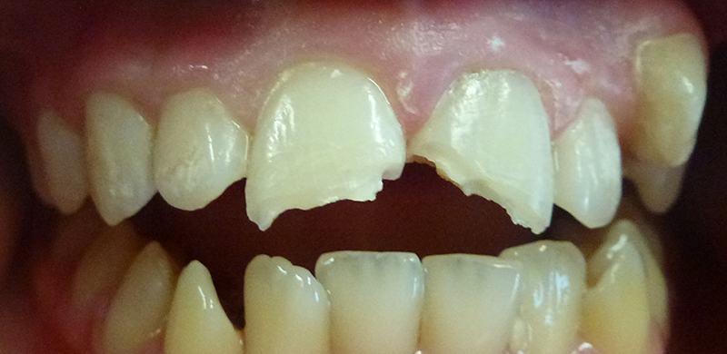 Trauma to Permanent Teeth - Before