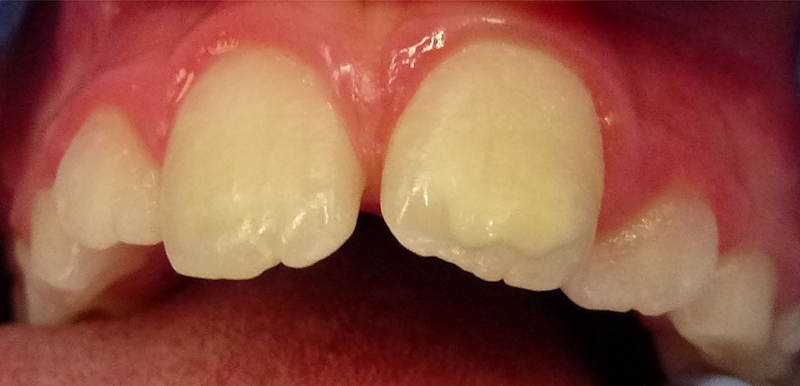 Mild MIH discolouration of permanent front tooth