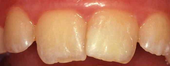 Moderate Incisor M.I.H. - After Treatment