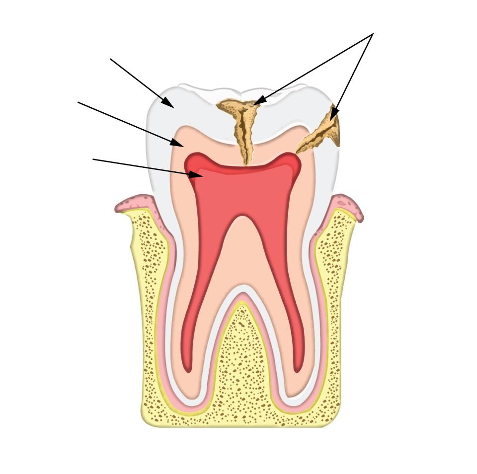 Tooth cavity